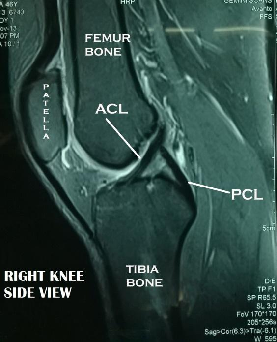 Knee Reconstruction Surgeon in Chennai